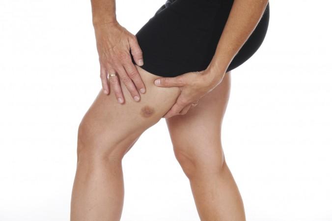 Vết bầm tím lan rộng có nguy hiểm không?
