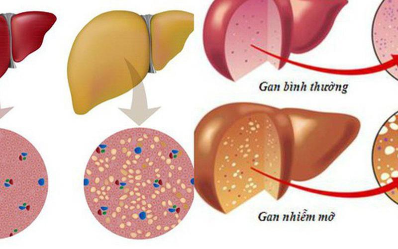 Thực phẩm tốt cho người mắc bệnh viêm gan