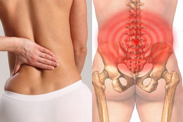 Đau vùng eo sau lưng đừng xem thường!
