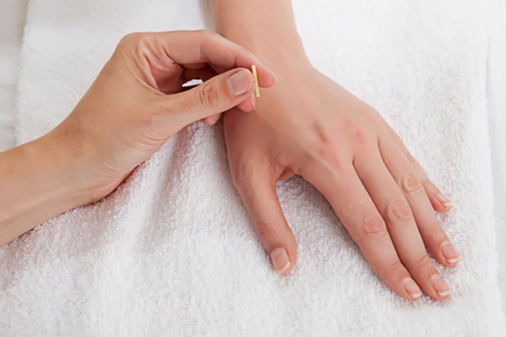 Châm cứu bấm huyệt có tác dụng giảm đau hiệu quả