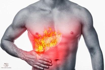 Triệu chứng bệnh gan nóng và cách thức điều trị hiệu quả